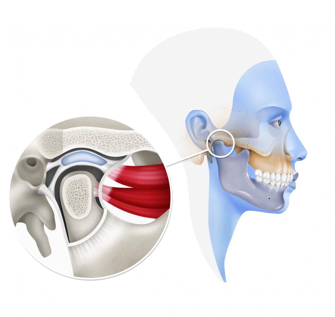 Temporomandibular Joint Oral And Maxillofacial Surgery