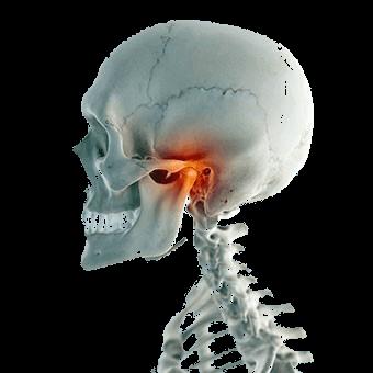 que es el sindrome de disfuncion temporomandibular
