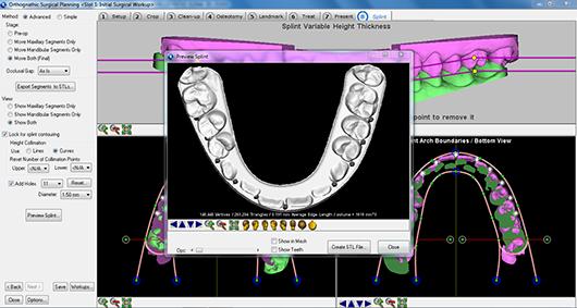 Planificació 3D