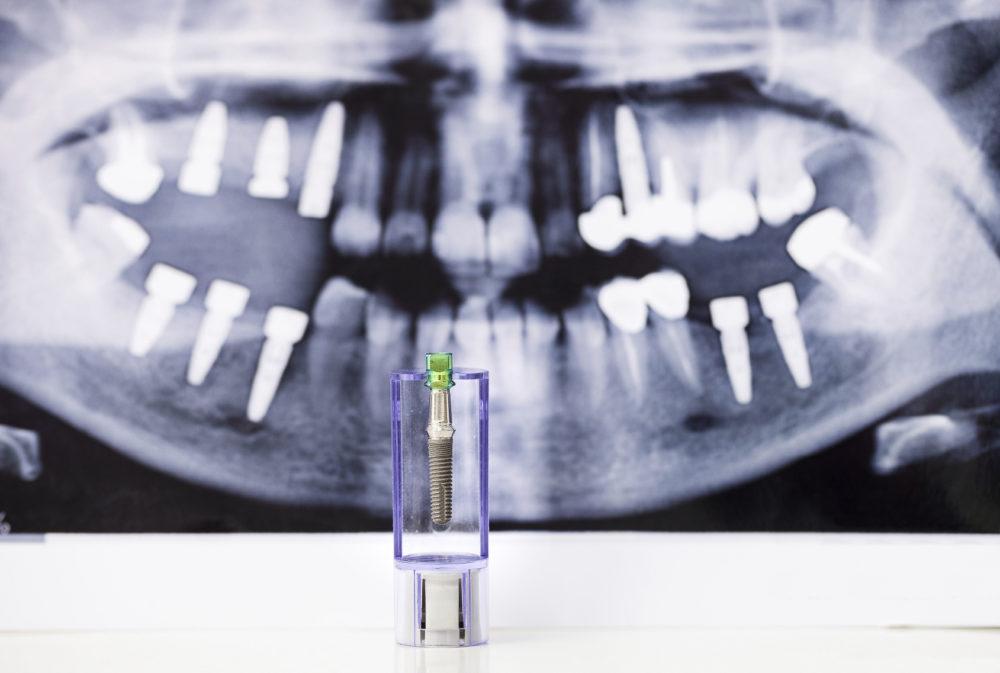 què són els implants dentals?