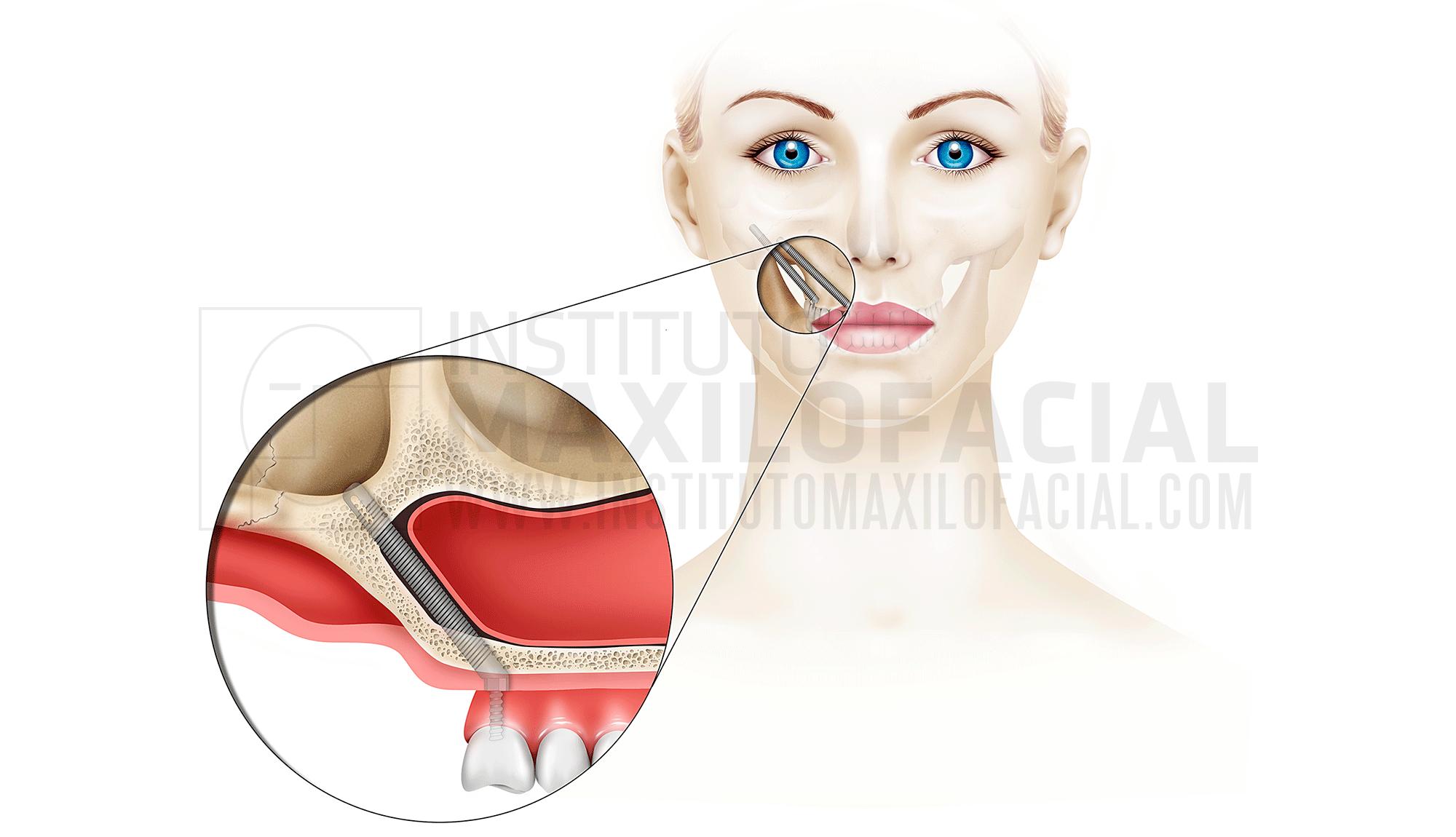 els 3 valors diferencials de l'institut maxil·lofacial
