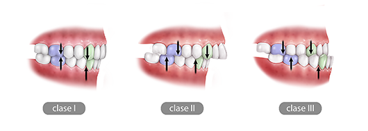 Orthodontics and Orthognathic surgery