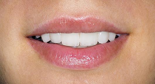 Què és l'estètica dental?