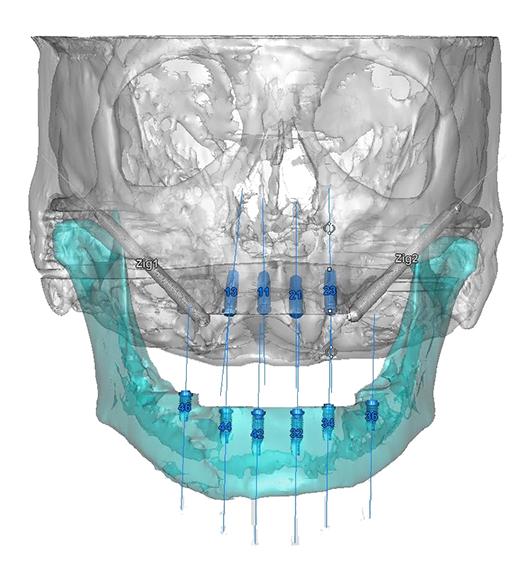¿Por qué Planificación 3D en Implantes Dentales?