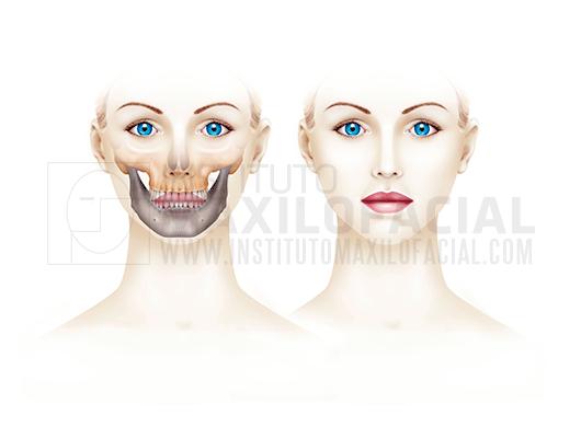 Cirurgia Ortognàtica