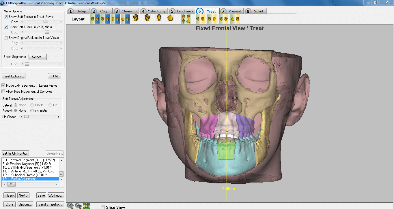 3d planning in orthognatic surgery instituto maxilofacial for 3d planner