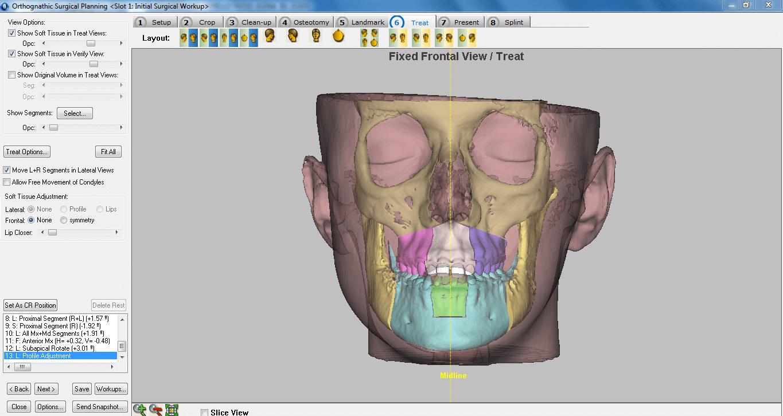 Planificación 3D en Cirugía Ortognática
