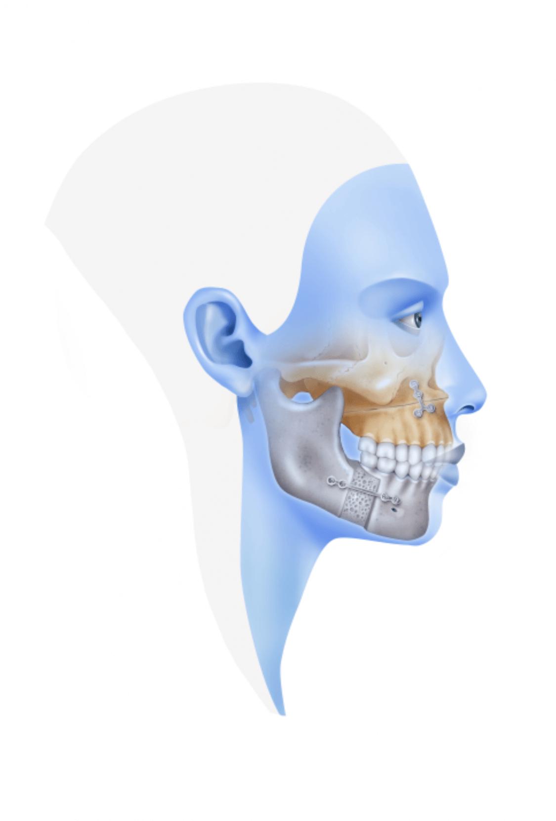 Orthognatic Surgery - Sleep Apnoea - Instituto Maxilofacial