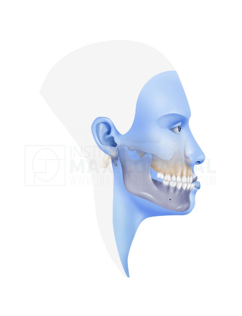 Mandibular Prognathism Or Class 3 Orthognathic Surgery