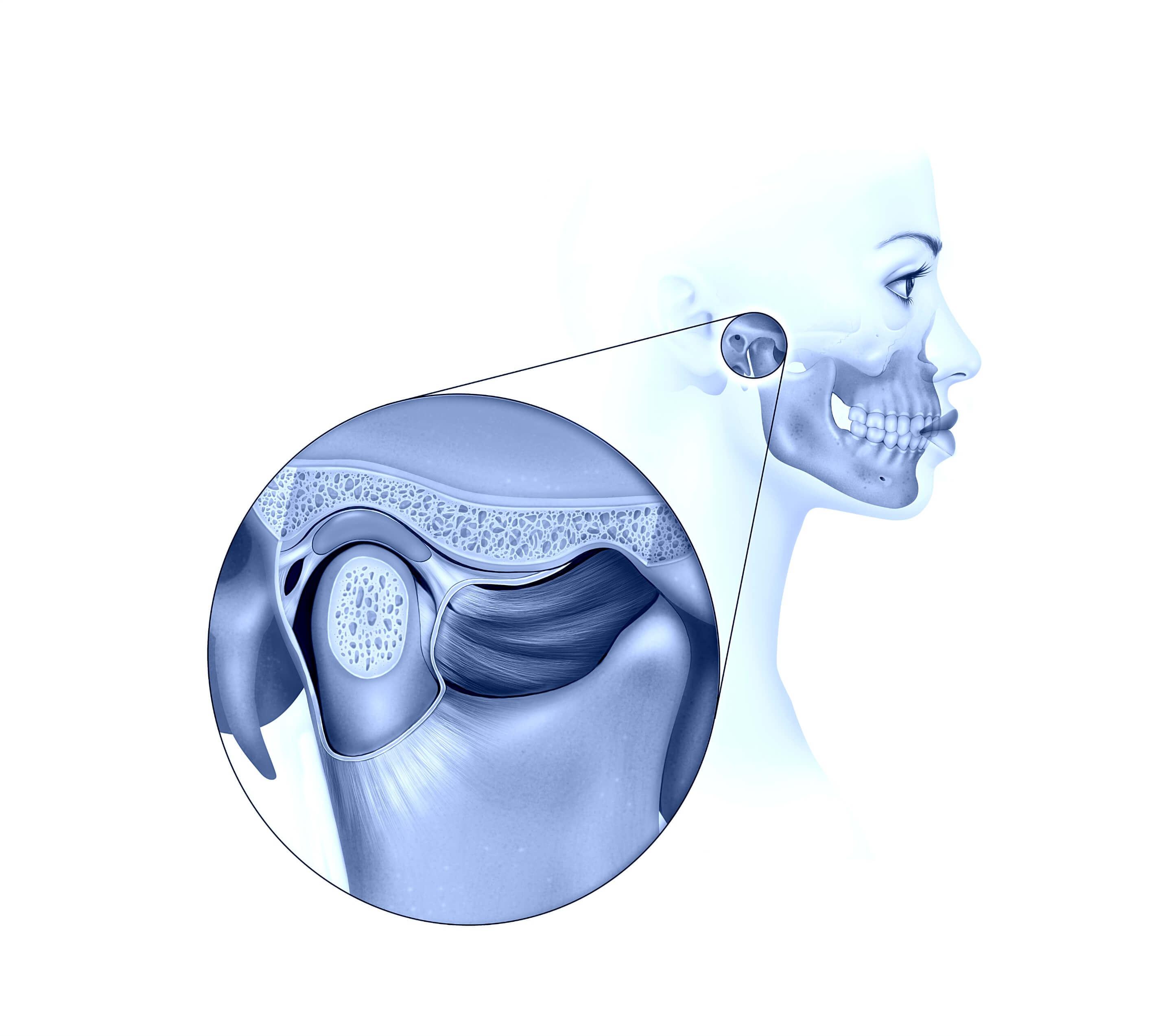 Articulación Temporomandibular - Cirugía Oral y Maxilofacial