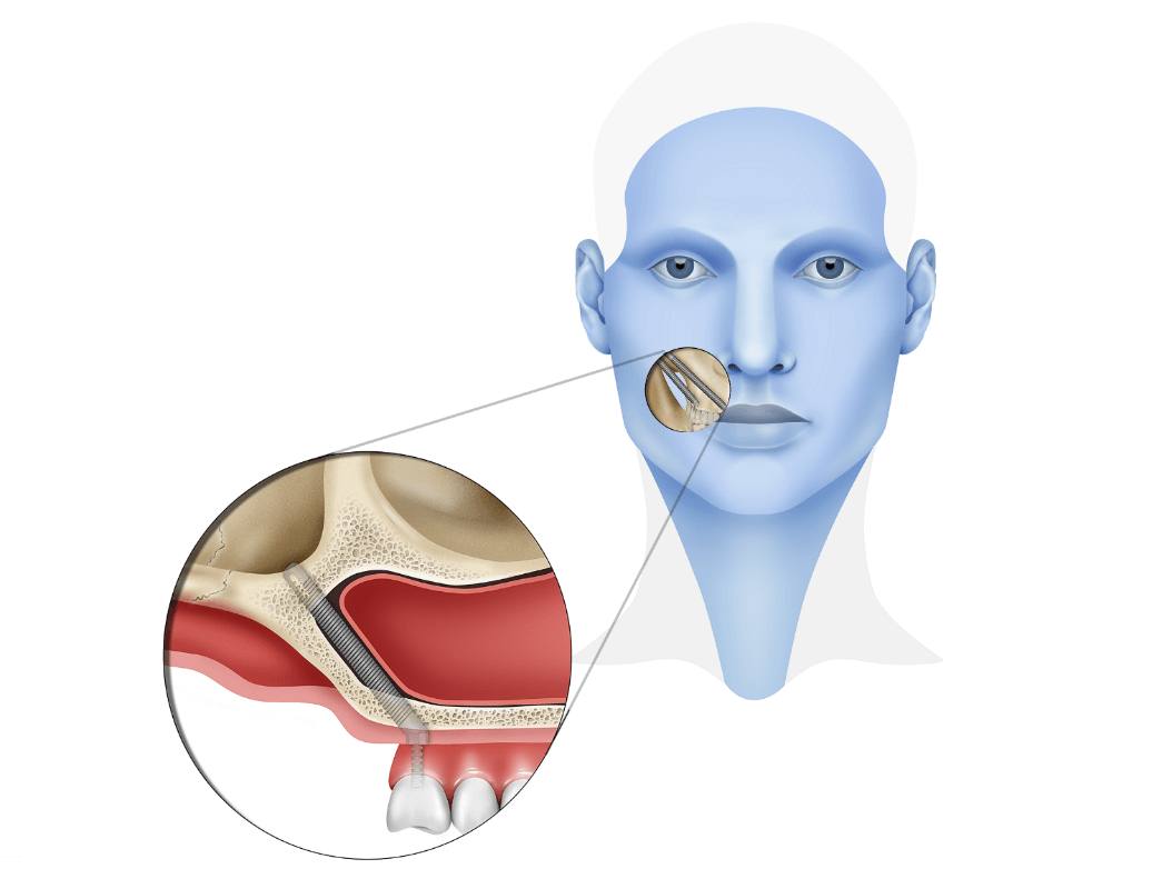 Zygomatic And Pterygoid Implants Dental Implants Instituto
