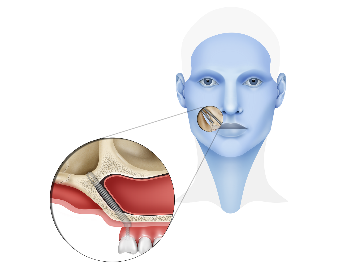 Zygomatic and Pterygoid Implants - Dental Implants - Instituto ...