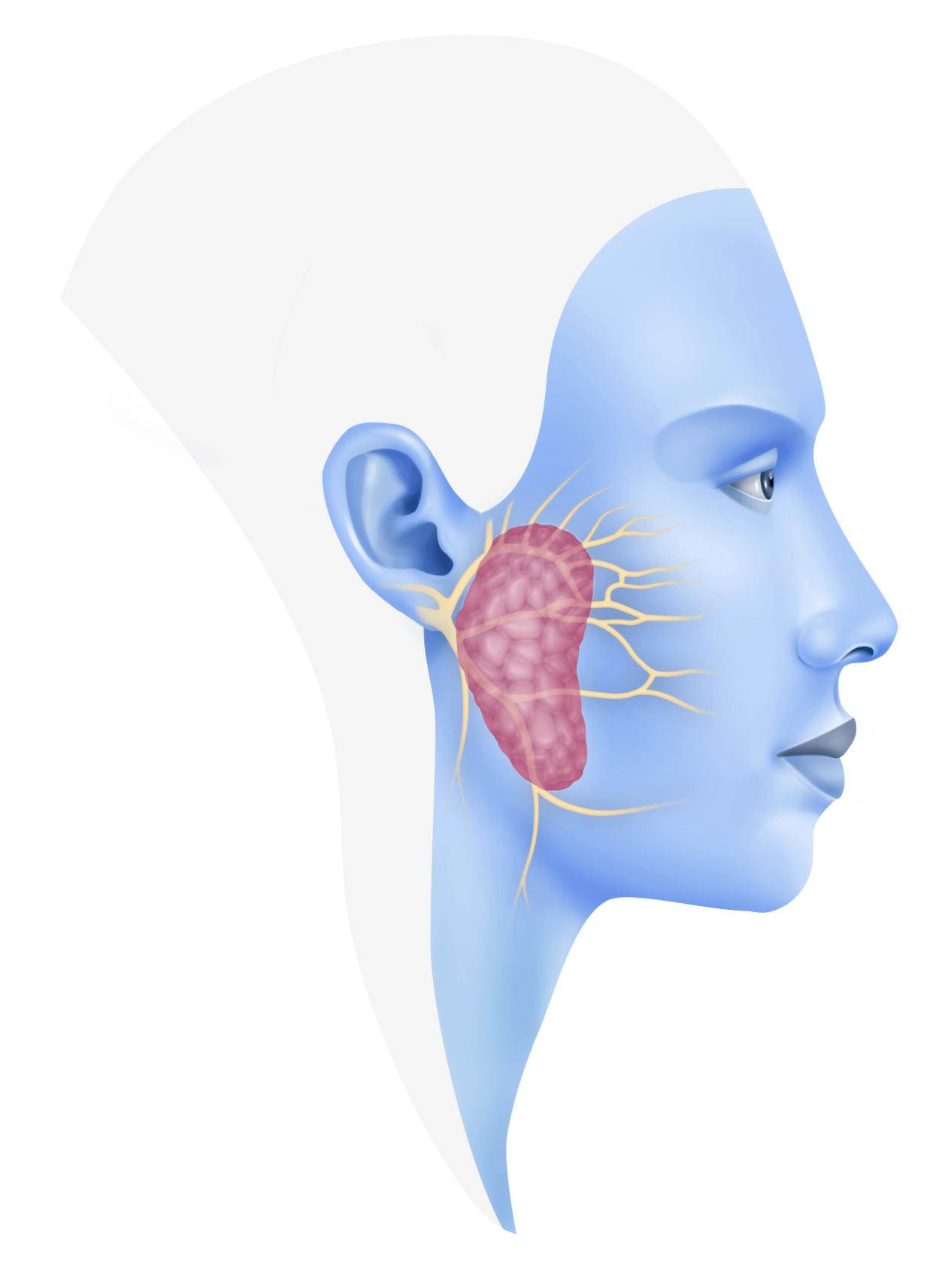 La parotida en dolor izquierda glandula
