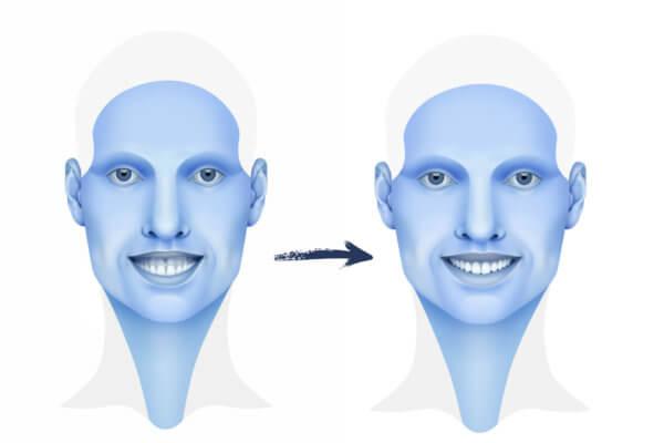 Síndrome De Cara Larga Que és Y Cómo Se Trata Instituto Maxilofacial